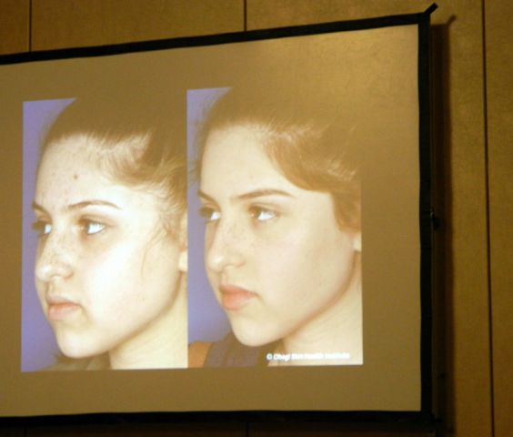 rimpels wegwerken met make up