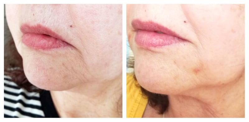 collage mond zijkant links fillers